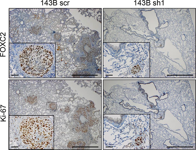 FOXC2 silencing diminishes metastatic lung colonization.