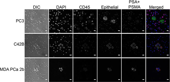 RNA in situ hybridization staining in prostate cancer cell lines.
