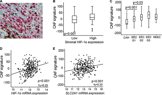 Carcinoma associated fibroblasts (CAFs) gene signature overexpressed in lesions of high stromal HIF-1α expression.