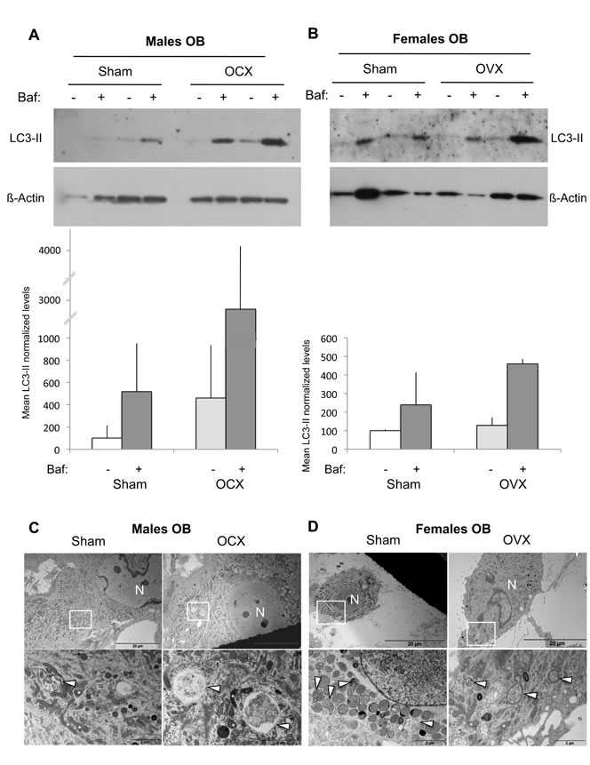 Autophagic activity in OB from gonadectomized mice.