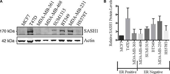 SASH1 protein expression in breast cancer cell lines.