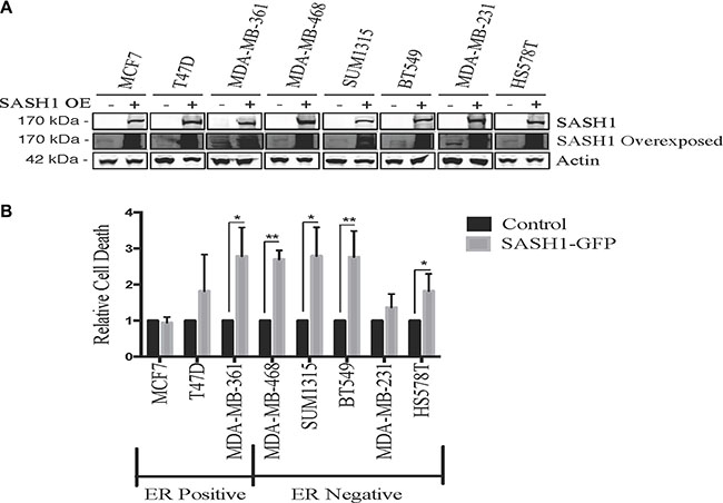 Ectopic SASH1 expression increases cell death.