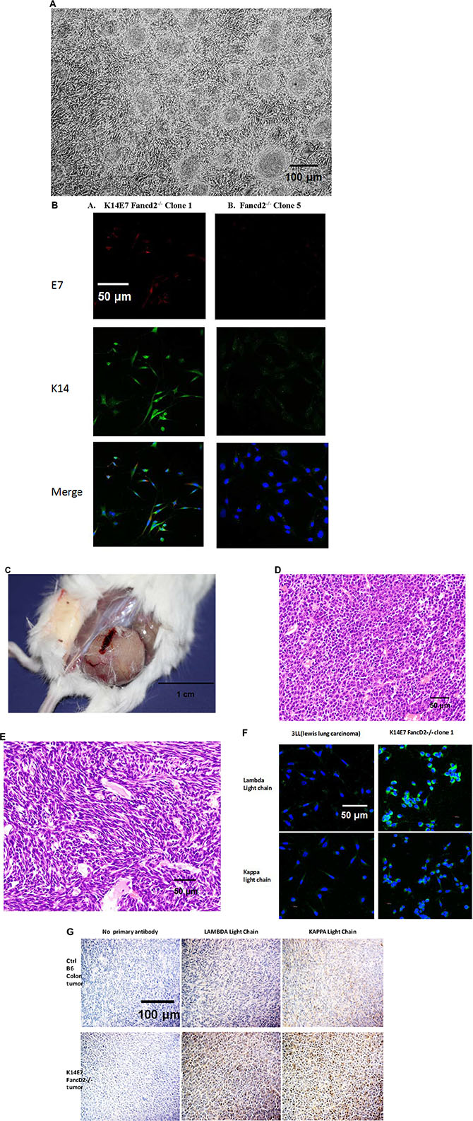 Morphology and immunohistochemistry for immunoglobulin kappa and lambda light chain in K14E7 Fancd2−/− clone 1 IL-3-dependent tumor forming cell lines.