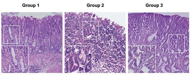 Representative Gastric Histopathology in Recipient Mice.