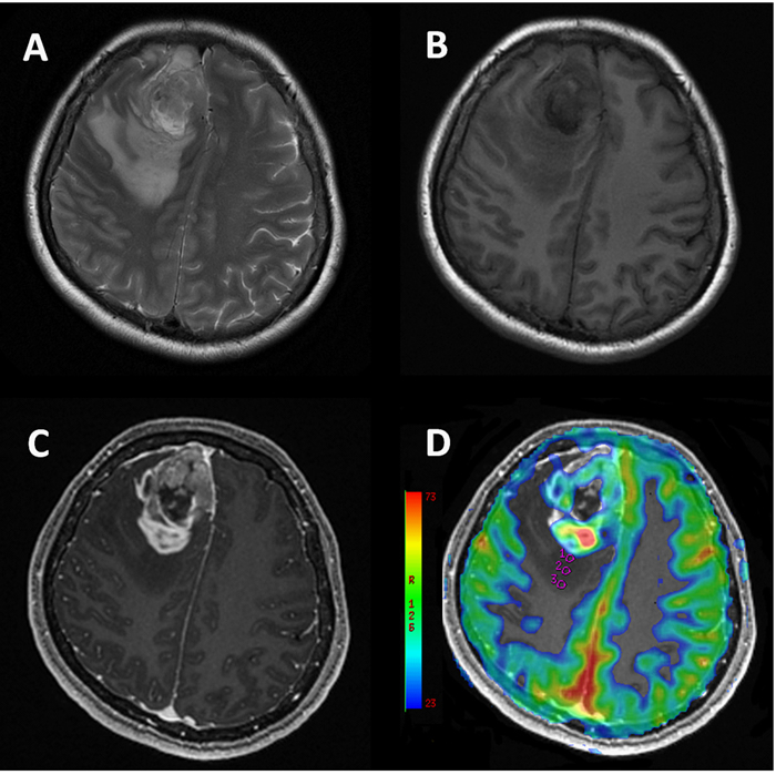 49-year-old female with glioblastoma.