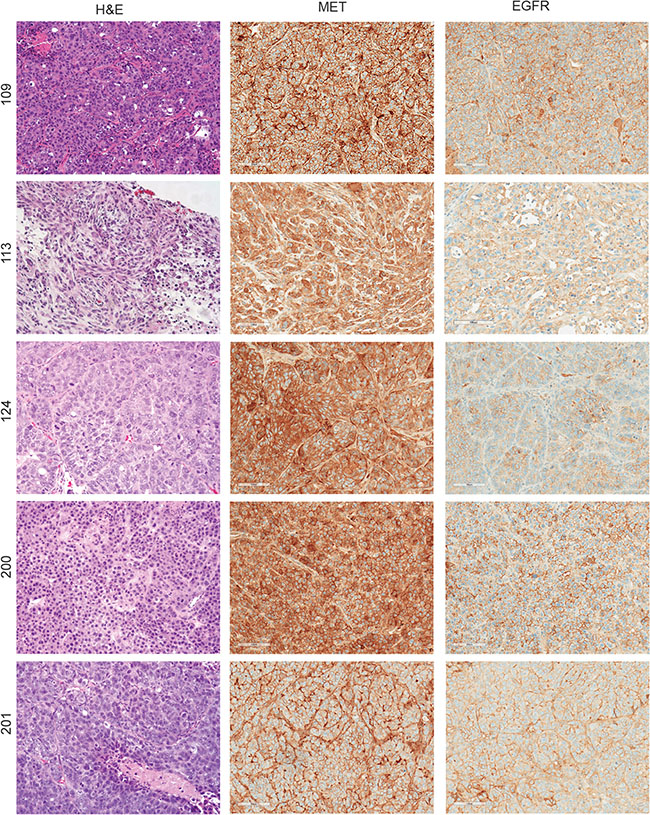 Diversity of MET and EGFR expression in patient-derived TNBC tumorgrafts.