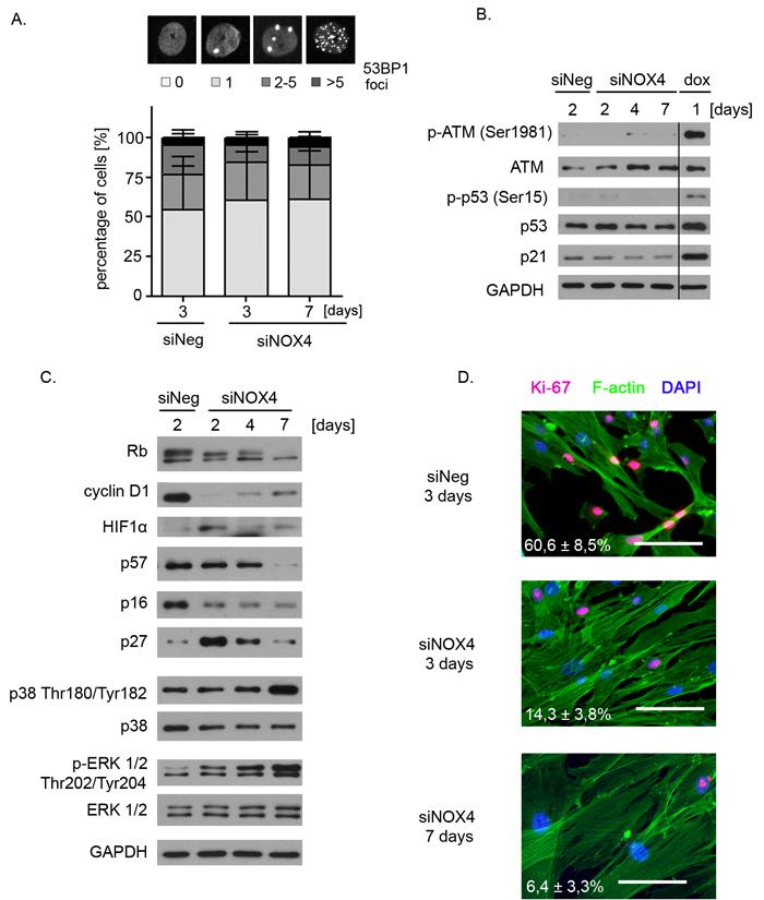 Molecular determinants of NOX4-downregulation-induced senescence.