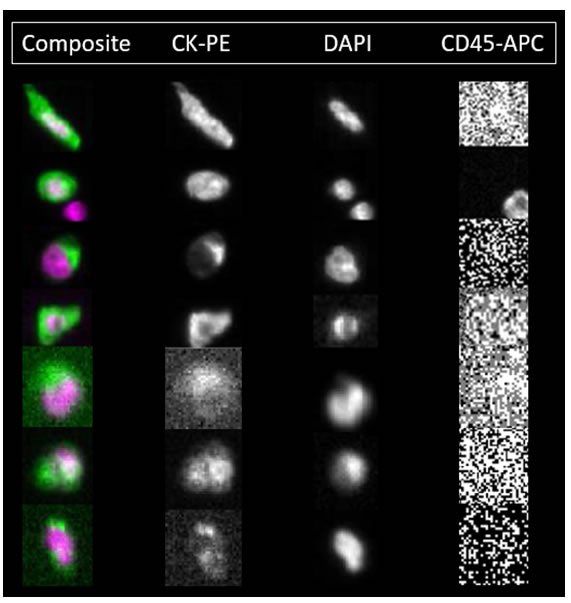 Patient CTCs detected by the CellSearch