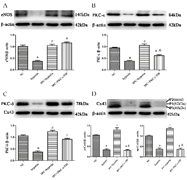 PKC-ε was involved in IPC-induced cardioprotection in vitro.
