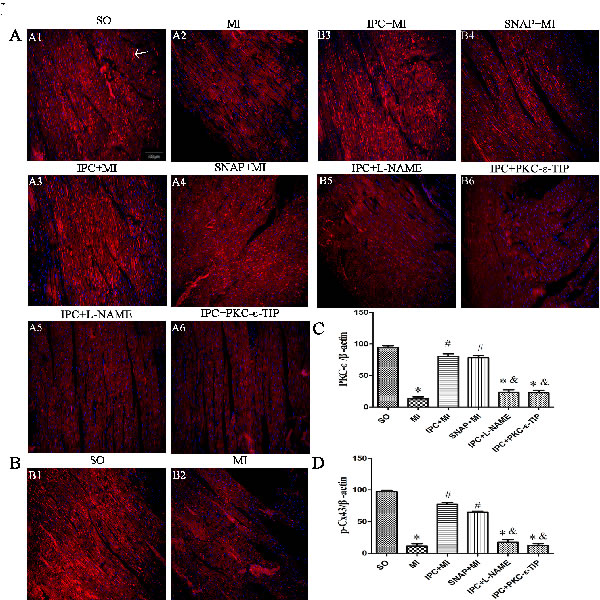 Effects NO and PKC-ε on IPC-induced cardioprotection