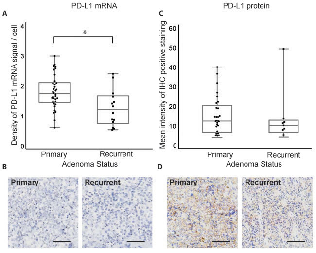 PD-L1 mRNA and protein expression in primary and recurrent pituitary tumors.