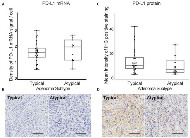 PD-L1 mRNA and protein expression in typical and atypical pituitary tumors.