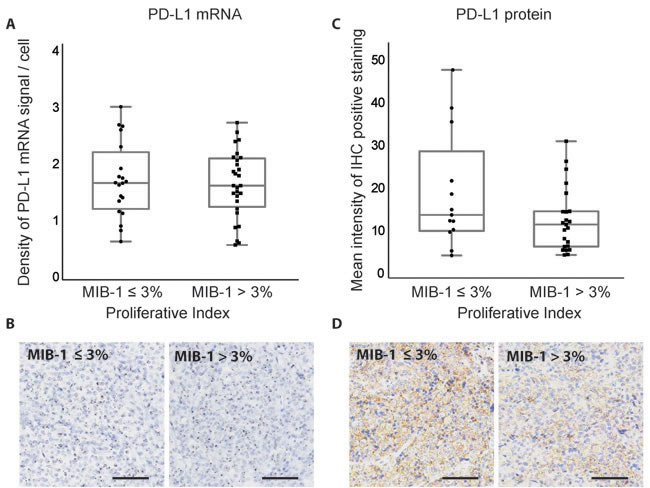 Correlation between MIB-1 proliferative index and PD-L1 expression in pituitary adenomas.