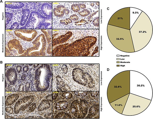 Distribution of staining-based FGFR4 and RAD51 expression in pre-neoadjuvant rectal cancer biopsies.