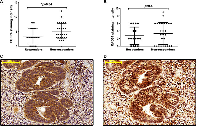 FGFR4 correlates with RAD51 protein levels and poor clinical outcome in human rectal cancer.