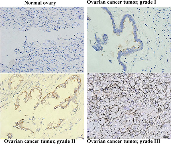 CD133 expression correlated with a high differentiation grade in human ovarian serous cystadenocarcinomas.
