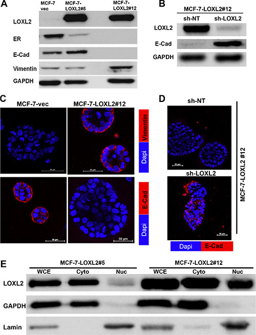 Characterization of MCF-7-LOXL2 cell lines for EMT and expression of luminal markers.