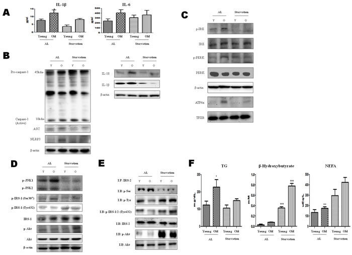 Modulation of ER-stress-induced inflammasome formation in acute starvation rat liver.
