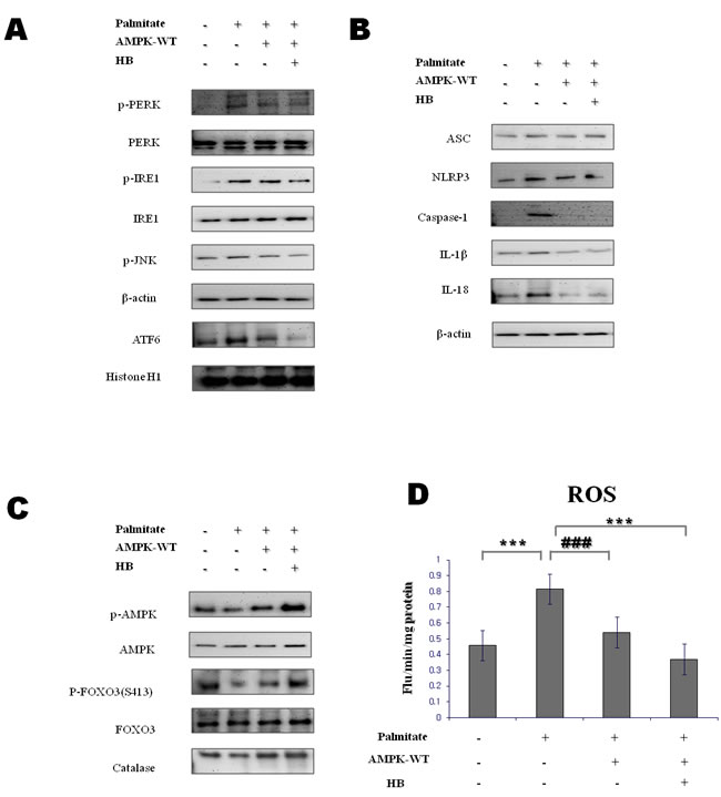 Effect of β-hydroxybutyrate on ER-stress-induced inflammasome formation
