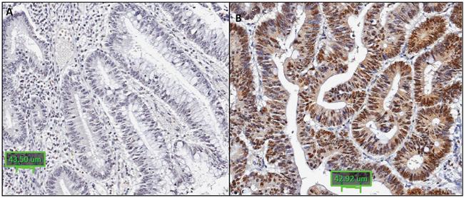 Representative images of RNF43 immunohistochemistry.