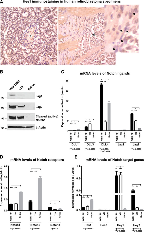 Expression of Notch pathway components in retinoblastoma primary tumors and cell lines.