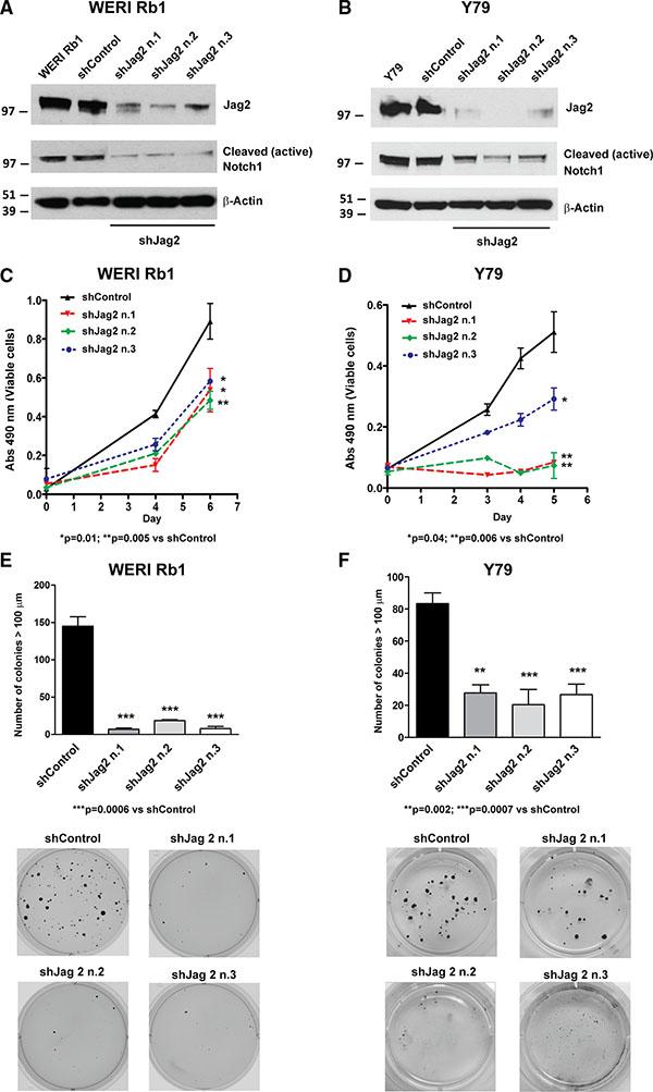 Genetic downregulation of the Notch ligand Jag2 inhibits growth and proliferation of retinoblastoma cells.