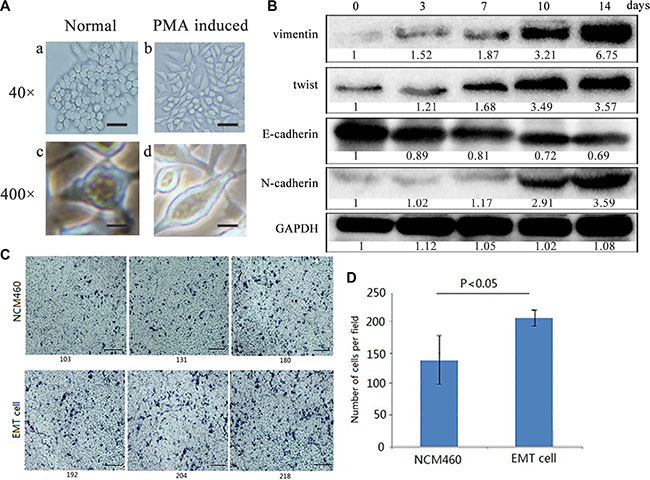 Colon epithelial NCM460 cells were induced into EMT- featured cells by PMA treatment.