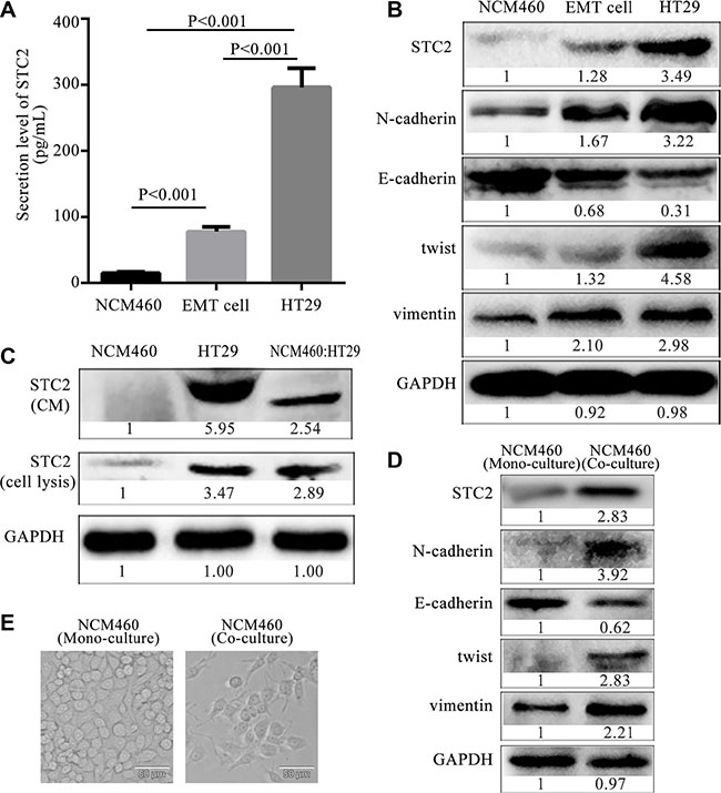 Expression and secretion level of STC2 from epithelia, EMT and colon cancer cells.