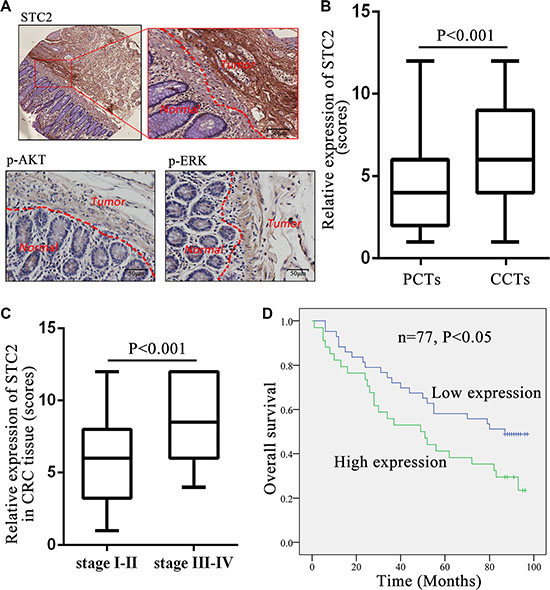 STC2 expression level in colorectal cancer tissues correlated with tumor stage and patient survival.