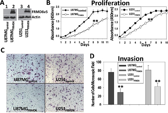 Increased expression of FRMD6 inhibits the GBM cell proliferation and invasion through Matrigel.
