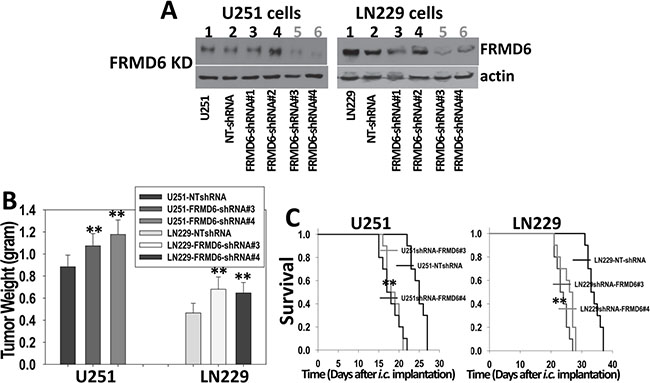 Knockdown of FRMD6 expression promotes growth and progression of GBM in vivo.