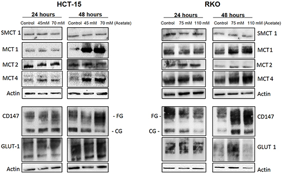 Characterization of MCTs expression and other glycolytic markers in CRC cells after acetate treatment.