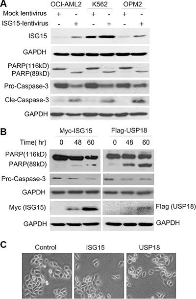 Ectopic ISG15 and USP18 induces cancer cell apoptosis.