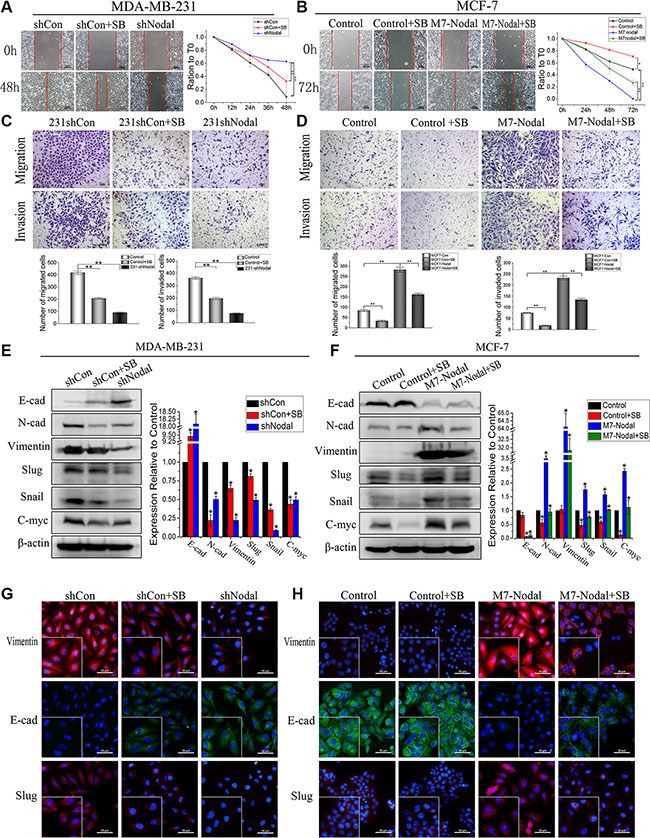 Nodal induces EMT via the Smad2/3 pathway in breast cancer cells.