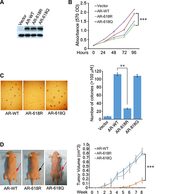 AR Acetylation at K618 enhances prostate cell oncogenecity and xenograft tumor growth.