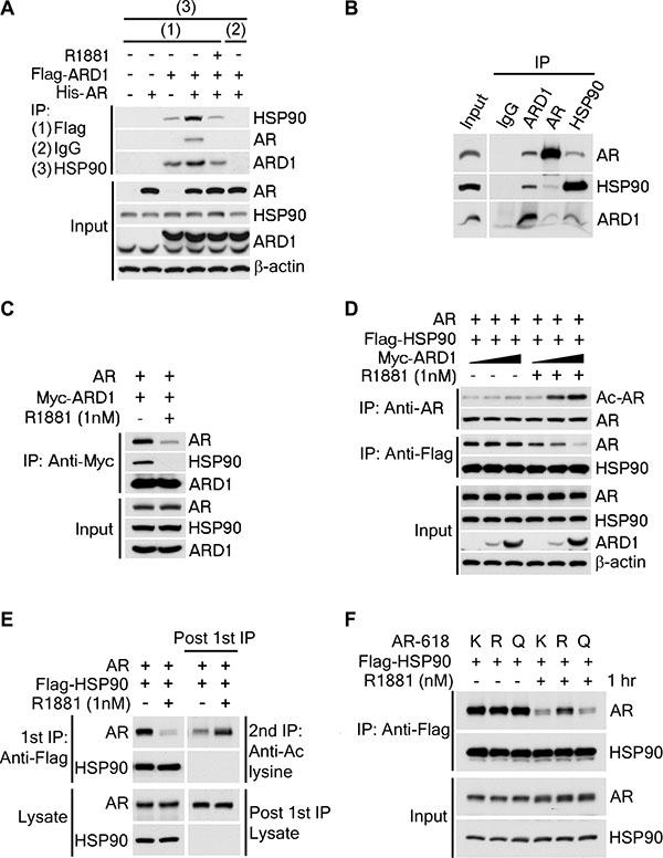 ARD1-mediated AR acetylation drives ligand-induced AR-HSP90 dissociation.