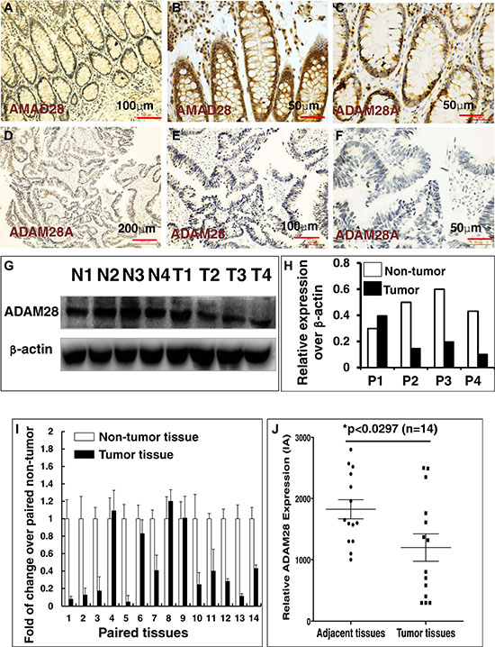 Immunohistochemistry (IHC) staining determined ADAM28 expression in human CRC tumors and matched adjacent tissues.