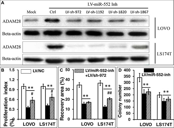 Knockdown of ADAM28 expression enhances the proliferation, migration and clonogenicity in LOVO and LS174T CRC cells.