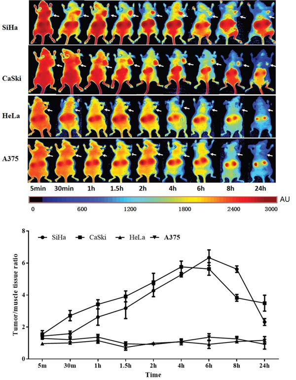 Tumor-targeted fluorescence imaging of the Z HPV16E7384 affibody.