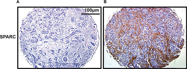 Representative staining of SPARC in gastric cancer tissue by IHC (200×).