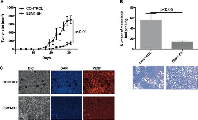 ESM1 knockdown inhibits MOC tumor growth and metastasis in vivo.