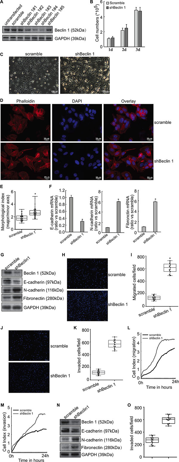 Induction of EMT by Beclin 1 knockdown in thyroid cancer cells.