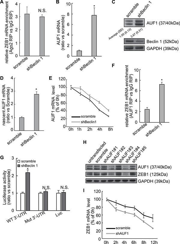 Involvement of AUF1 in stabilization of ZEB1 mRNA by Beclin 1 knockdown in FRO cells.