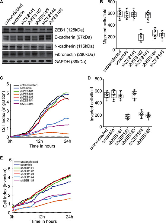 Involvement of ZEB1 in induction of EMT and promotion of invasion by Beclin 1 knockdown in FRO cells.