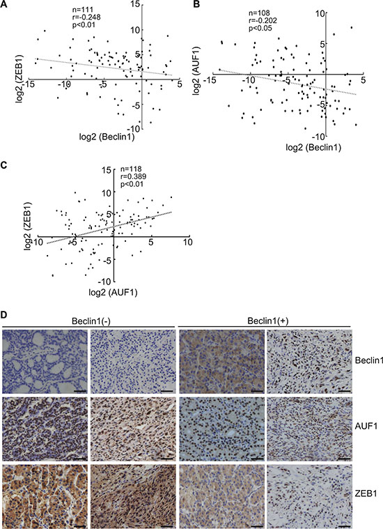 Negative correlation of Beclin 1 and ZEB1 or AUF1 expression in thyroid cancers.