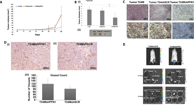 Tumor growth and metastasis analyses in T24M, T24MshSCR and T24MshPFN1 tumor bearing NOD/SCID mice.
