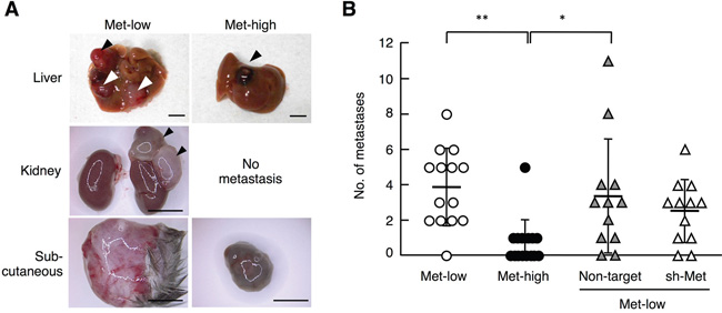 Metastasis of Met-low and Met-high cells to organs other than lungs.