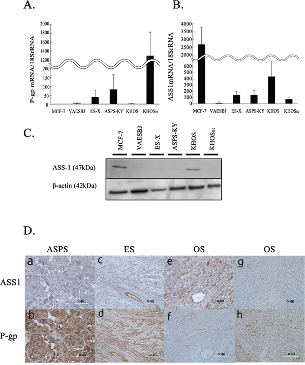 The levels of P-gp and ASS1 expression in MCF-7 cells and five sarcoma cells.