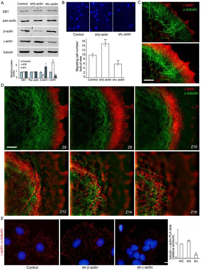 γ-actin-microtubule interaction after actin isoform down-regulation.