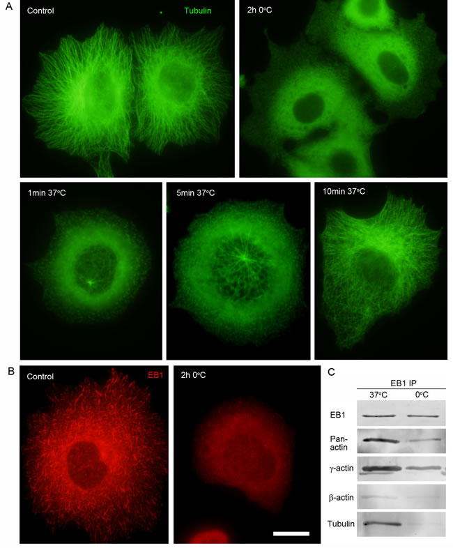 Interaction of EB1 with microtubules and the cytoplasmic γ-actin isoform in different conditions of tubulin polymerization.